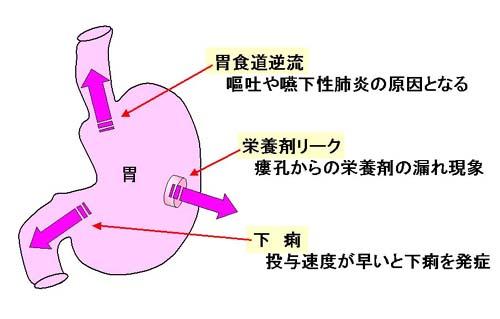 管 剤 経 栄養